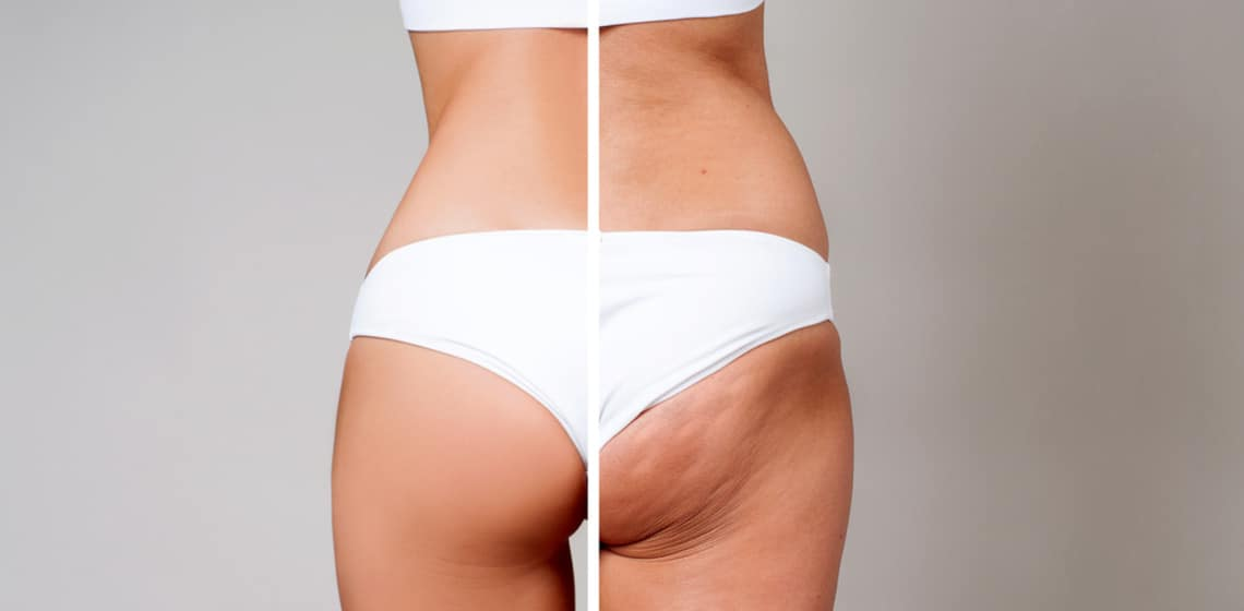 Cellulite Po Vorher-Nachher Bild