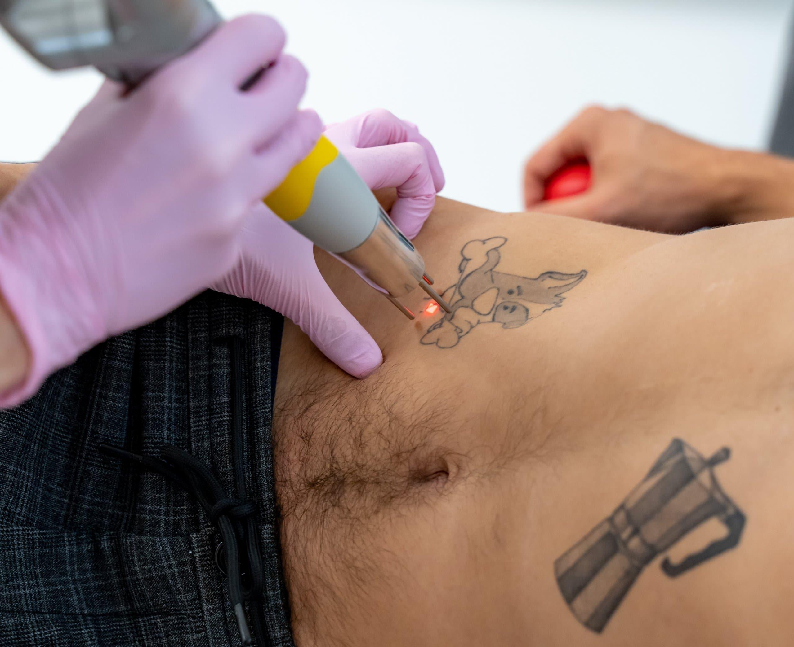 Laserbehandlung um Tattoo auszubessern